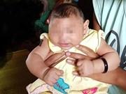 Un premier cas d'enfant atteint d'une microcéphalie