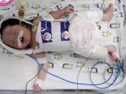 Cân Tho: un nouveau-né touché par l'hypoxie cérébrale sauvé