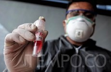 L'Indonésie commence à produire les kits de test rapide de dépistage du COVID-19