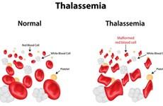 Sensibiliser davantage les gens sur la thalassémie