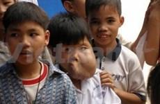 Tumeur: Un petit vietnamien opéré grâce à des aides canadiennes