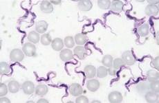 Premier cas de trypanosomiase au Vietnam