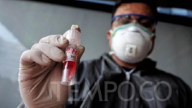 L'Indonesie commence a produire les kits de test rapide de depistage du COVID-19 hinh anh 1