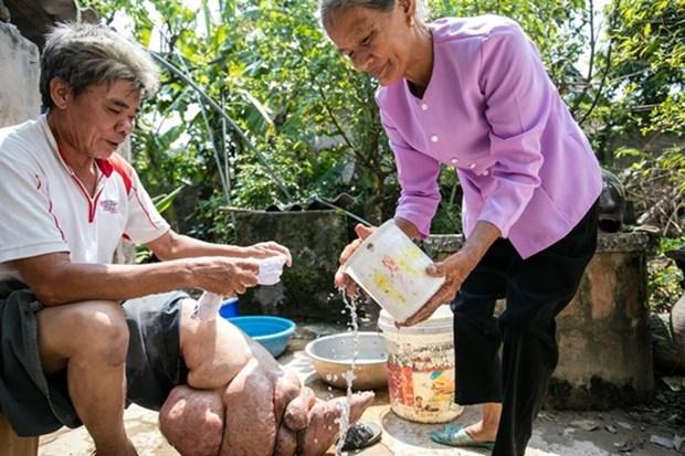 Le Vietnam a reussi a eliminer la filariose lymphatique hinh anh 1