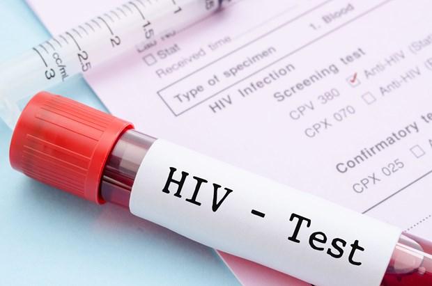 Un seminaire sur le sida et les hepatites virales a Hanoi hinh anh 1