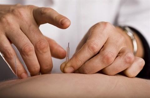L'acupuncture au service de l'autisme infantile hinh anh 1