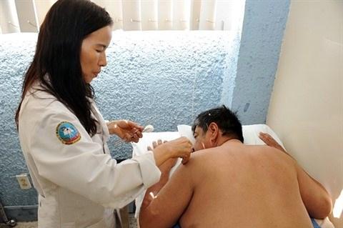 Acupuncture au Mexique, une medecine qui a du piquant hinh anh 1