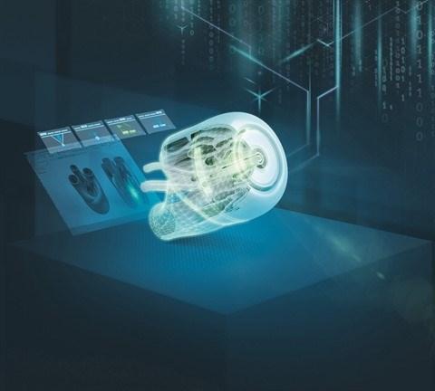 Siemens stimule la production de dispositifs medicaux anti-epidemiques hinh anh 1